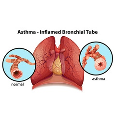 An asthma-inflamed bronchial tube vector