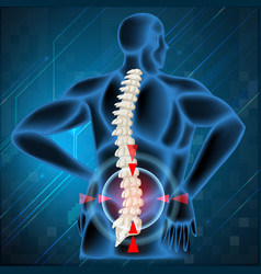 Spine bone showing back pain vector