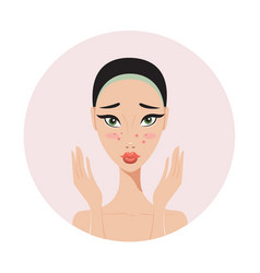 Young beautiful woman with skin problems and acne vector
