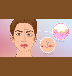 Premature wrinkles cosmetology aging of the skin vector