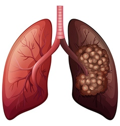 Normal lung and lung cancer vector