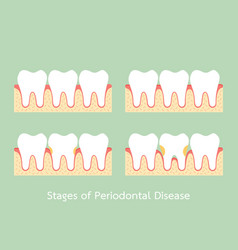 Step of periodontal disease vector