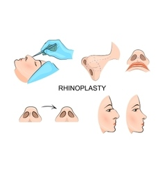 Plastic nose cosmetic surgery vector
