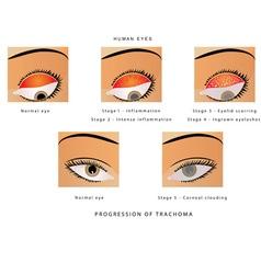 Trachoma of the eye vector