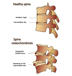 Healthy and sick spine vector