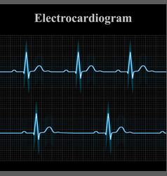Normal and bradycardial ekg charts vector