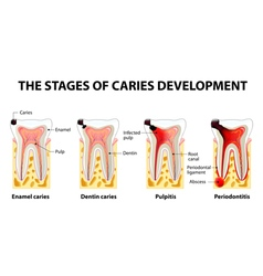 Dental disease caries pulpitis and periodontitis vector