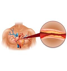 Cholesterol in human heart vector image vector image