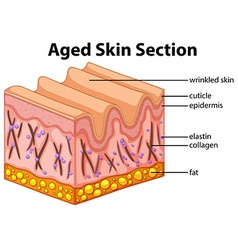 Aged skin section diagram vector