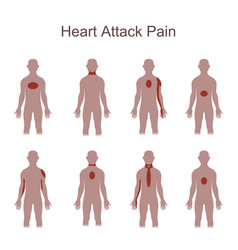 heart attack pain location vector image vector image