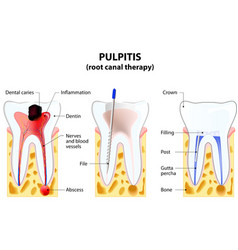 Pulpitis root canal therapy vector