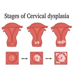 Cervical dysplasia vector