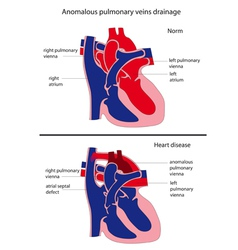 Anomalous pulmonary venous drainage heart disease vector