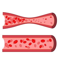 Bloody artery blockage of blood vessels sick vector