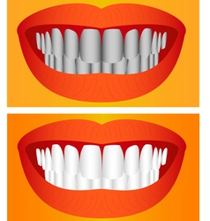 Care of teeth vector