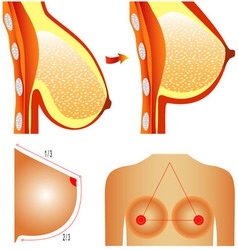 Plastic surgery of breast vector