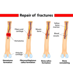 Bone Fracture and repair vector image