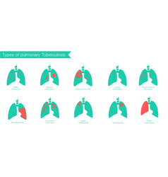 Types of tuberculosis silhouette medical vector