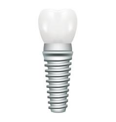 dental implant model closeup cut away side view vector image vector image