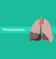 lung with pneumonia sick or illness with flat vector image vector image