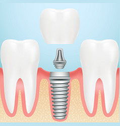 realistic healthy teeth and dental implant vector image vector image