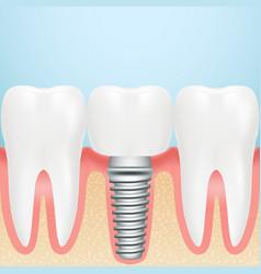 realistic dental implant installation of dental vector image vector image