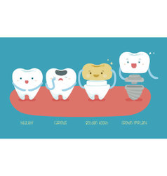 Healthy tooth carious golden tooth and crown imp vector