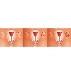 Three stages of ovarian cancer vector image vector image