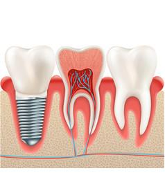 Dental implant set eps 10 vector