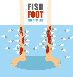 Treatment foot fish Medical procedure for vector image