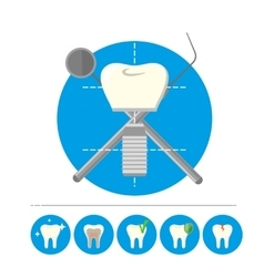 Tooth implant isolated vector