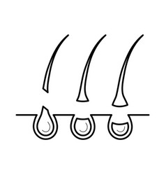 Hair removed from the skin surface without bulb vector