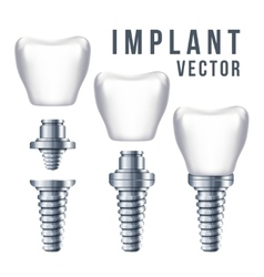 Dental tooth implant and parts vector