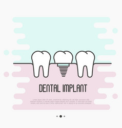 dental implant concept two healthy teeth vector image vector image