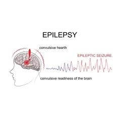 Epilepsy factors of emergence vector