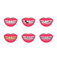 realistic detailed 3d dental problems set vector image vector image