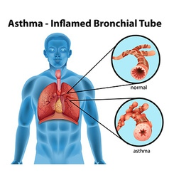 Asthma-inflamed bronchial tube vector