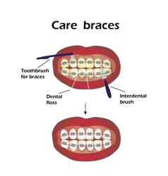 Care braces interdental brush teeth dental floss vector