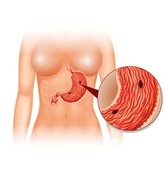 Stomach ulcer diagram in woman vector