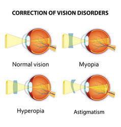 Correction of eye vision disorders by lens vector