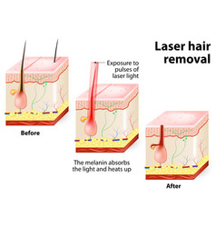 laser hair removal vector image