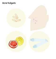 Acne vulgaris and take care facial skin vector