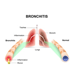 Bronchitis vector image