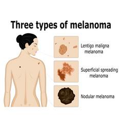 Three types of melanoma vector