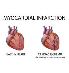 Heart myocardial infarction vector