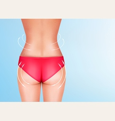 Lines showing surgery on female body vector image
