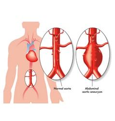 Abdominal aortic aneurysm vector
