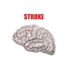 A hemorrhagic stroke vector