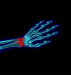 hand pain vector image