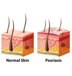 Human skin diagram with normal and psoriasis vector